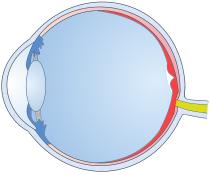 Retinal Support