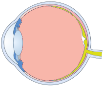 Vitreous Support